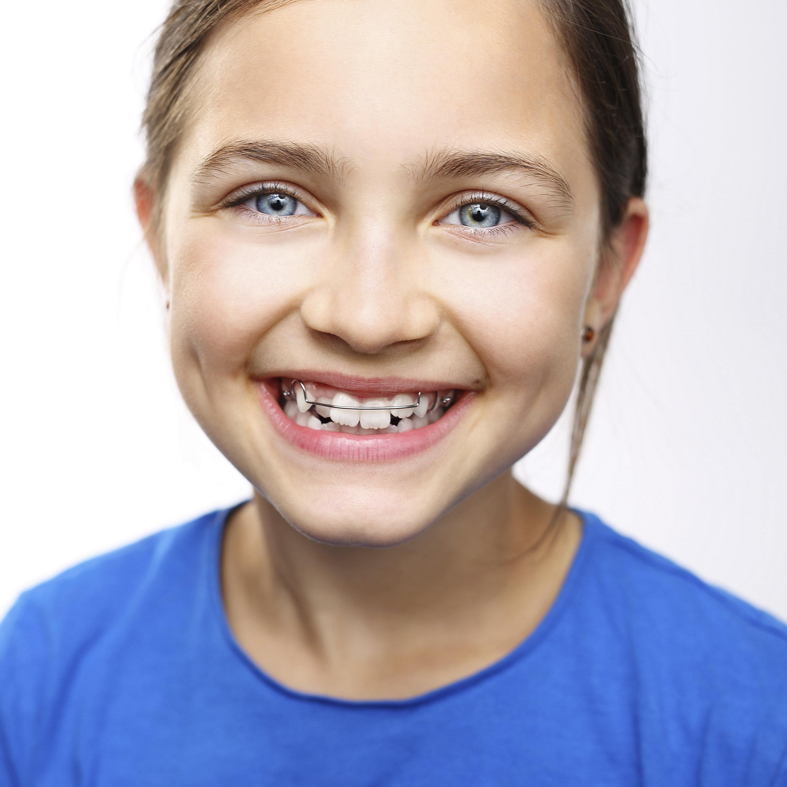 Orthodontic Care For Children